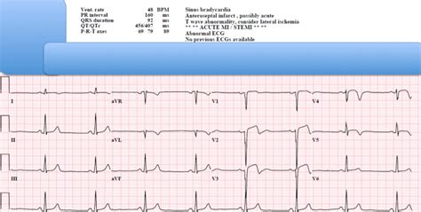 Dr Smiths Ecg Blog Is This Stemi No It Is One Of The