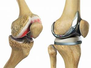 Total Knee Replacement Recovery  What To Expect