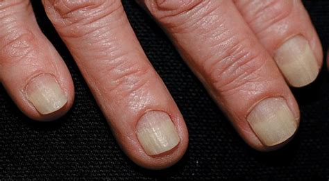 disorders   nail apparatus plastic surgery key