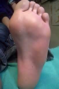 Plantar Warts On Feet