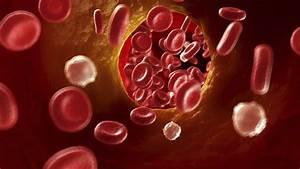 Thrombose Starker Muskelkater Kann Auf Eine Thrombose