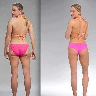 BrazilLift Spotlight Transformation Nikki Kuban Minton