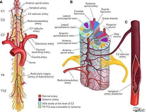 Spinal Cord Infarction Because of Spontaneous Vertebral ...