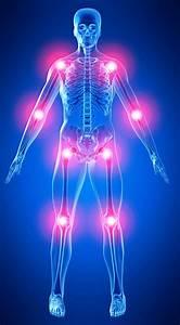 Мазь для лечения суставов терафлекс