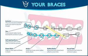 Orthodontic Glossary Of Terms Olathe Emporia Lenexa  Shawnee Ky