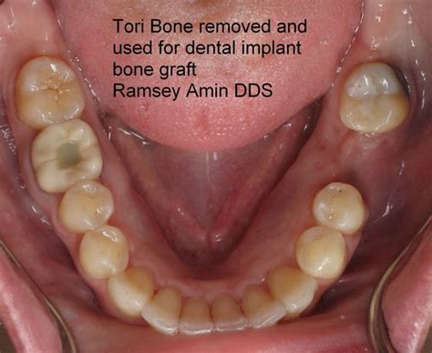 mandibular tori   bone graft source  dental