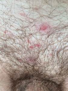 Hair Bumps On Itchy Private Area In Women