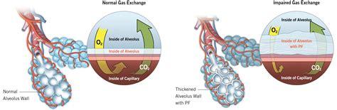 pulmonary fibrosis pulmonary fibrosis foundation