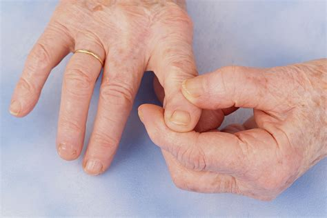 Hand Osteoarthritis Treatment Recommendations