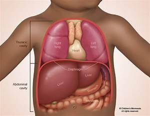 Congenital Diaphragmatic Hernia Treatment
