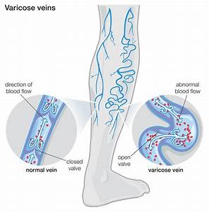 Are You Suffering From Varicose Veins