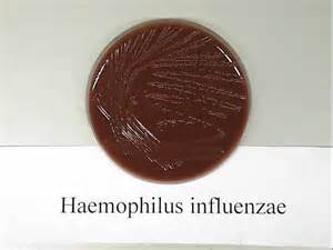 Haemophilus Influenzae Related Keywords & Suggestions - Haemophilus ... Meningitis - H. influenzae