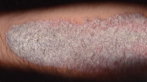 skin disorders pictures  symptoms treatments