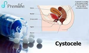 Cystocele - Premilife