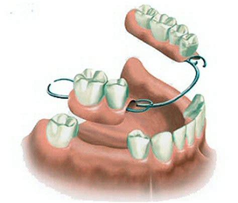 ponti  disilicato  litio dentaxitdentaxit