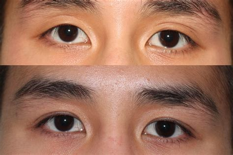 double eyelid surgery asian eyelid result  double
