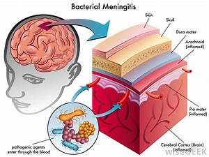 What Is The Difference Between Sepsis And Meningitis
