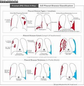 Asbestosis Diagrams