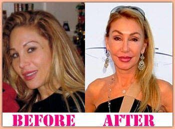 Adrienne Maloof Plastic Surgery Before and After Adrienne