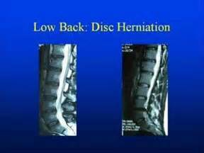 Pinched Nerve Lower Back MRI