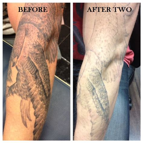 fading tattoos