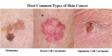 skin cancer   facts aspire hospital
