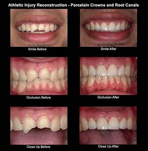 9 best Before and After Dental Pictures images on ...