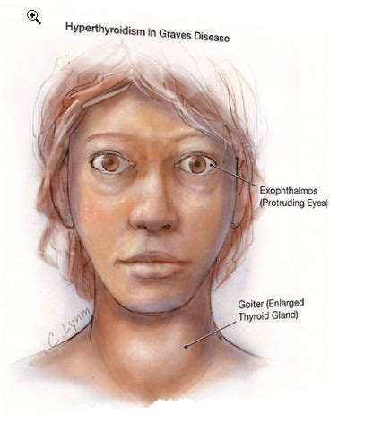 39 Best Images About Graves Disease On Pinterest. Safety Engineer Education Increase Page Views. Android Sharepoint App Ipad Business Software. Rn To Paramedic Bridge Course. Office For Mac 2008 System Requirements. How To Download Pictures To Ipad. Technical Schools In Orange County Ca. Woodland Hills Urgent Care Mapping Out A Run. Secure Records Management Mailing A Post Card
