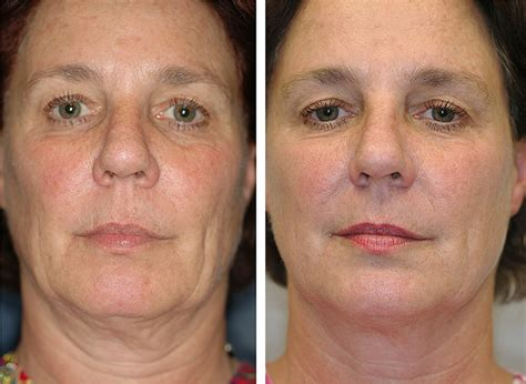 Jowls (Jawline) | Anti-Aging Vancouver
