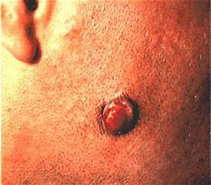 HIV-Related Cancers Images - HIV Sarcoma, Kaposi's