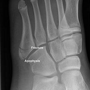 Base of 5th metatarsal fracture and apophysis | Image ...