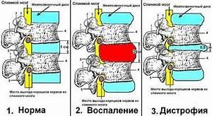 Остеохондроз корешковый синдром лечение народными средствами