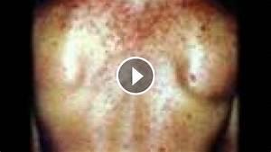 Anabolik U00e1 A Steroidy
