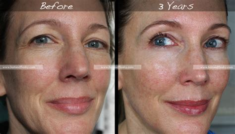 Renova Lighting by Retin A For Wrinkles 3 Year Results Before Amp After