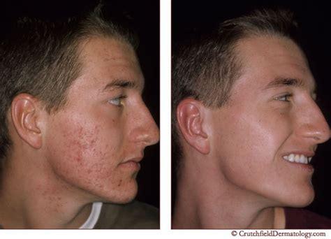Acne Scar Treatment Facial Scars Removal