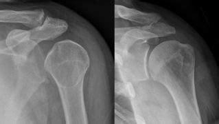 Shoulder dislocation - WikEM