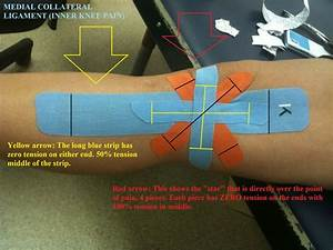 17 Best Images About Mcl Injury And Rehab  On Pinterest