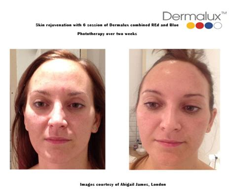 led light therapy before and after led light therapy for the skin