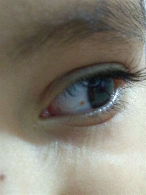 small red dot  left eye    year  daughter