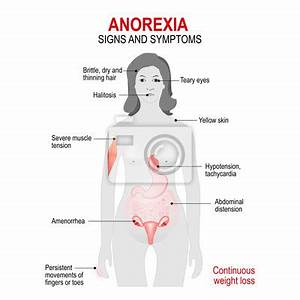 anorexia | Buy Photos | AP Images | Search