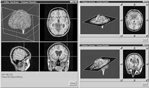 L - Image Processing