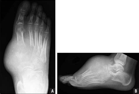 Osteosarcoma Of The Foot
