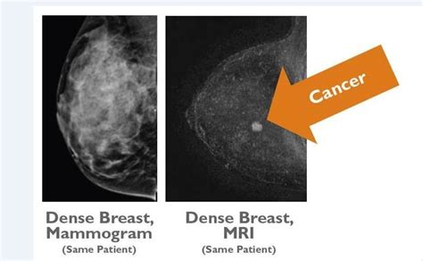 breast forms seattle via radiology in seattle offers a new type of breast