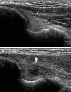 Bilateral Ultrasound Images Of The Ulnar Collateral