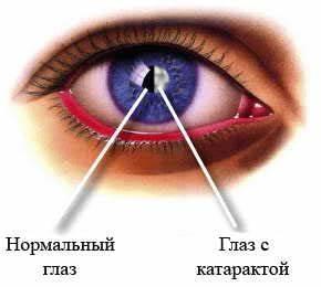 Лазерное лечение гипертонии