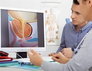 Корни петрушки от простатита