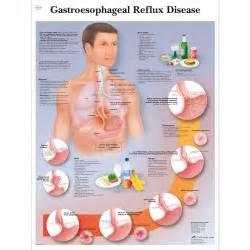 VR1711UU: Gastroesophageal Reflux Disease Chart (GERD) GERD