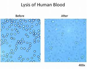 Red Blood Cell Lysis  Ack Lysing Buffer