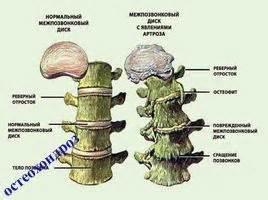Таблетки от остеохондроза и их название