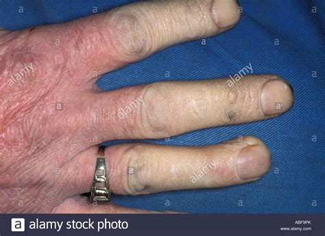 Raynauds Phenomenon Blanching Of The Fingers Due To